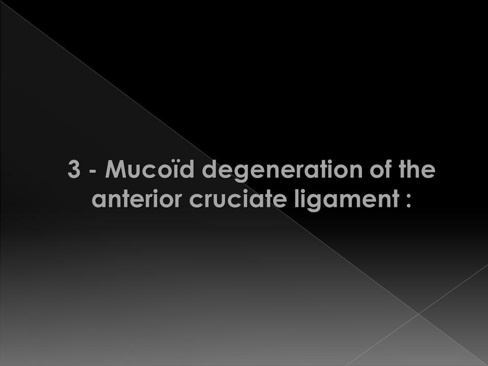 3 - Mucoïd degeneration of the anterior cruciate ligament :