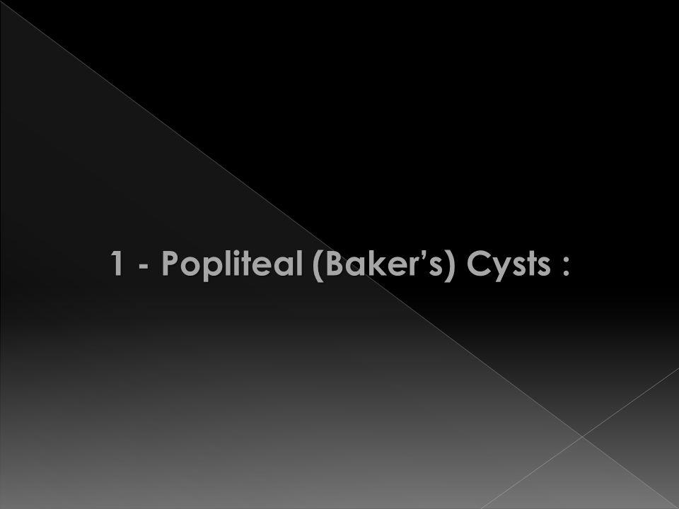 1 - Popliteal (Baker's) Cysts :