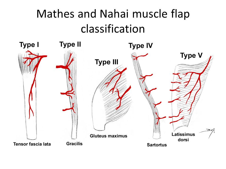 Mathes and Nahai muscle flap classification