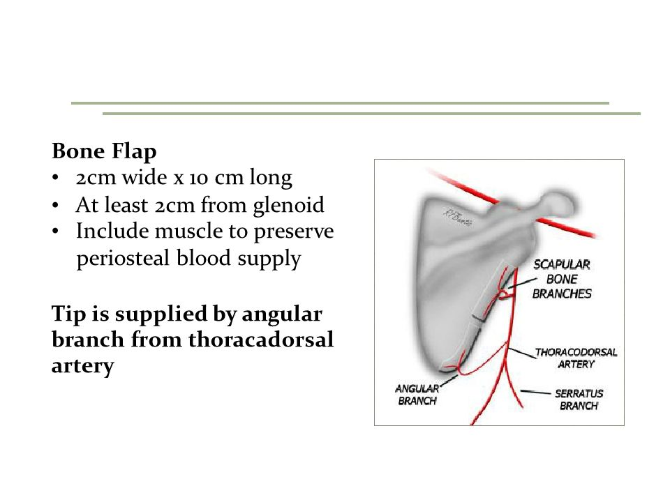 Bone Flap 2cm wide x 10 cm long At least 2cm from glenoid Include muscle to preserve periosteal blood supply Tip is supplied by angular branch from thoracadorsal artery