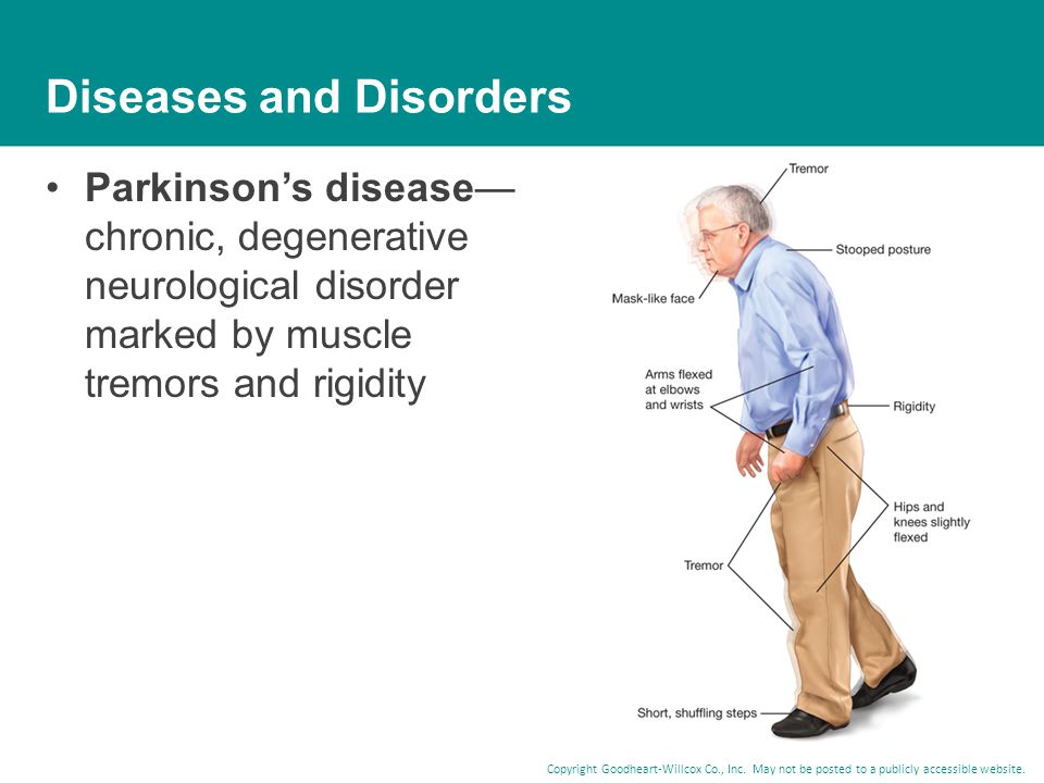 Copyright Goodheart-Willcox Co., Inc. May not be posted to a publicly accessible website. Diseases and Disorders Parkinson's disease— chronic, degener