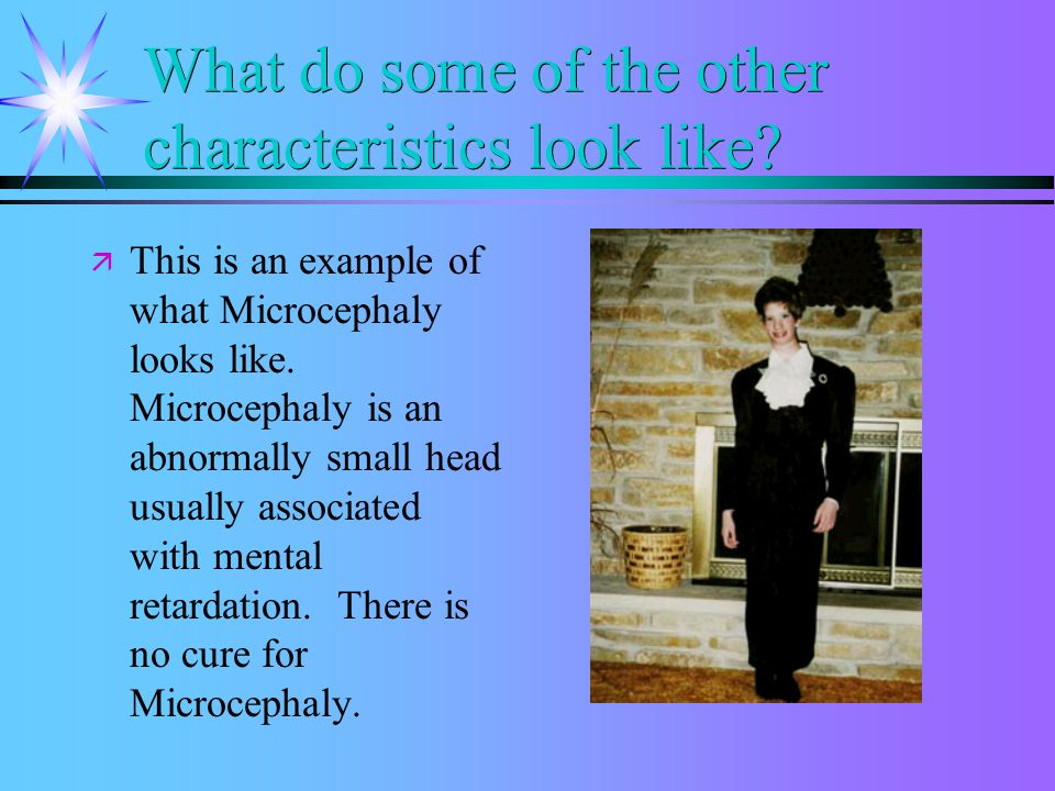 What do some of the characteristics look like? ä ä This is an example of what the characteristic of wide set eyes looks like.