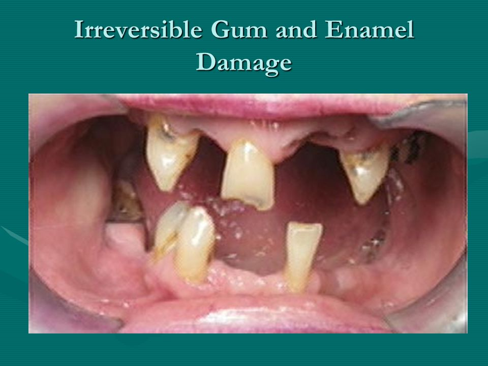 Irreversible Gum and Enamel Damage