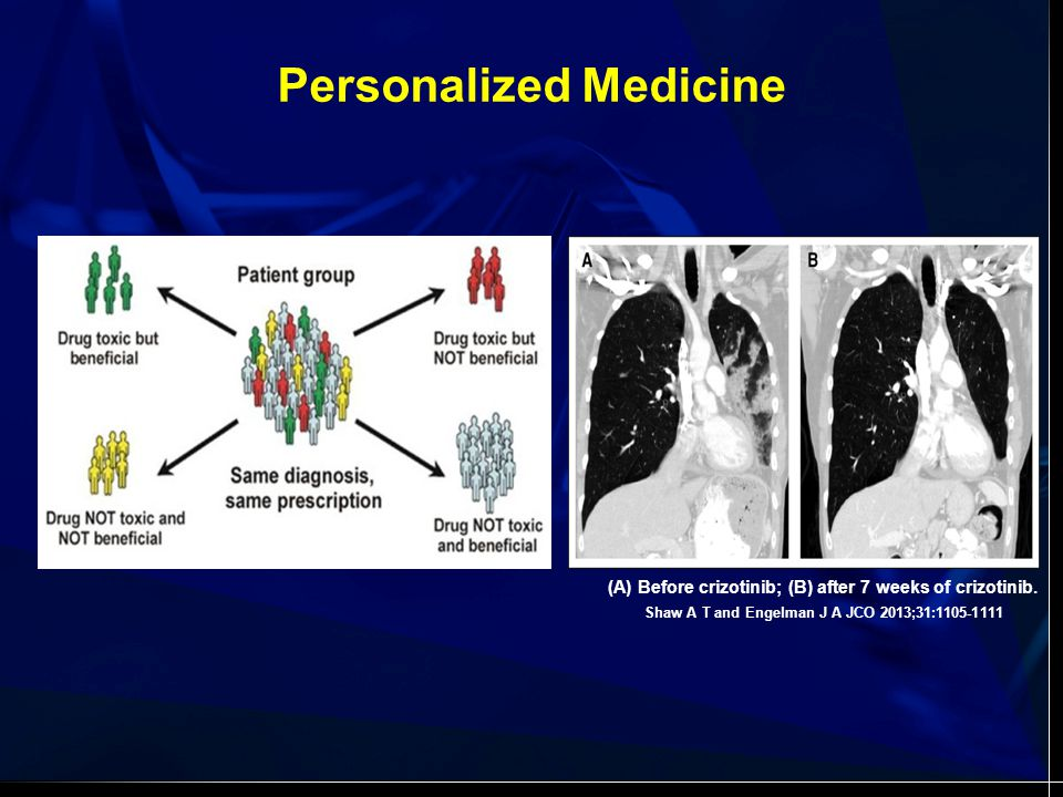 Personalized Medicine Shaw A T and Engelman J A JCO 2013;31:1105-1111 (A) Before crizotinib; (B) after 7 weeks of crizotinib.