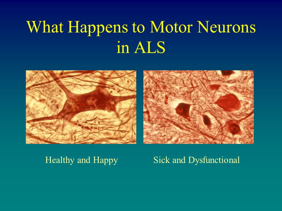 What Happens to Motor Neurons in ALS Healthy and HappySick and Dysfunctional