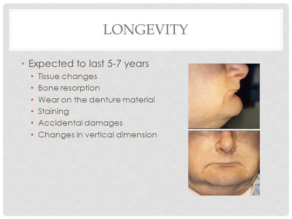 LONGEVITY Expected to last 5-7 years Tissue changes Bone resorption Wear on the denture material Staining Accidental damages Changes in vertical dimension