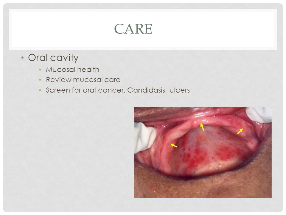 CARE Oral cavity Mucosal health Review mucosal care Screen for oral cancer, Candidasis, ulcers