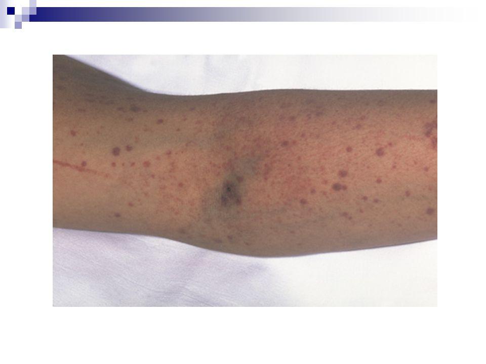 When all else fails… Steroids IVIg / anti-D Rituximab (anti-CD20) Cyclophosphamide Danazol Accessory splenectomy H.