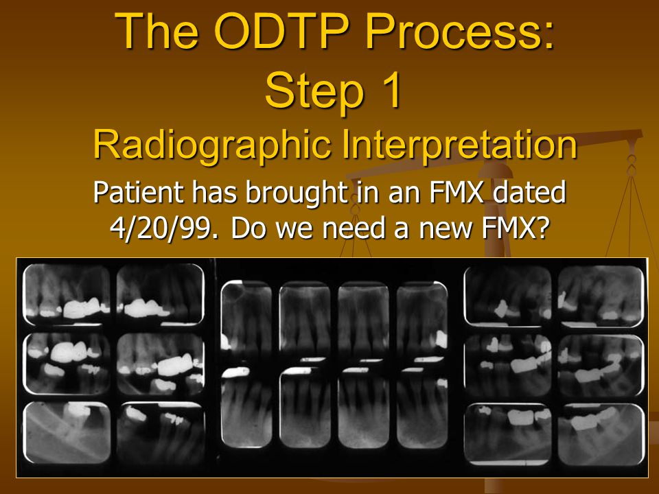 The ODTP Process: Step 1 Radiographic Interpretation Patient has brought in an FMX dated 4/20/99.
