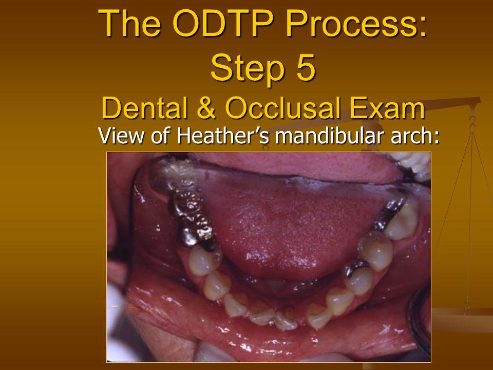 The ODTP Process: Step 5 Dental & Occlusal Exam View of Heather's mandibular arch: