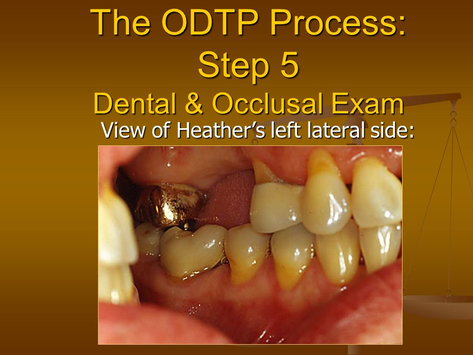 The ODTP Process: Step 5 Dental & Occlusal Exam View of Heather's left lateral side: