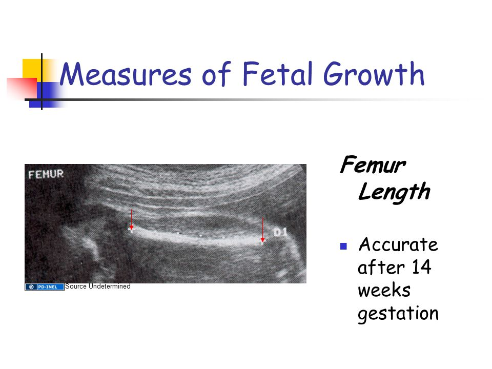 Measures of Fetal Growth Femur Length Accurate after 14 weeks gestation Source Undetermined