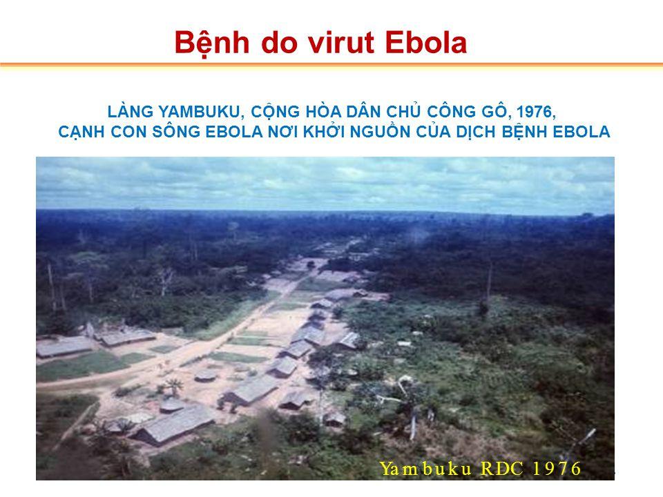 2.2.Tác nhân  Tác nhân: do Virus Ebola thuộc họ Filoviridae.