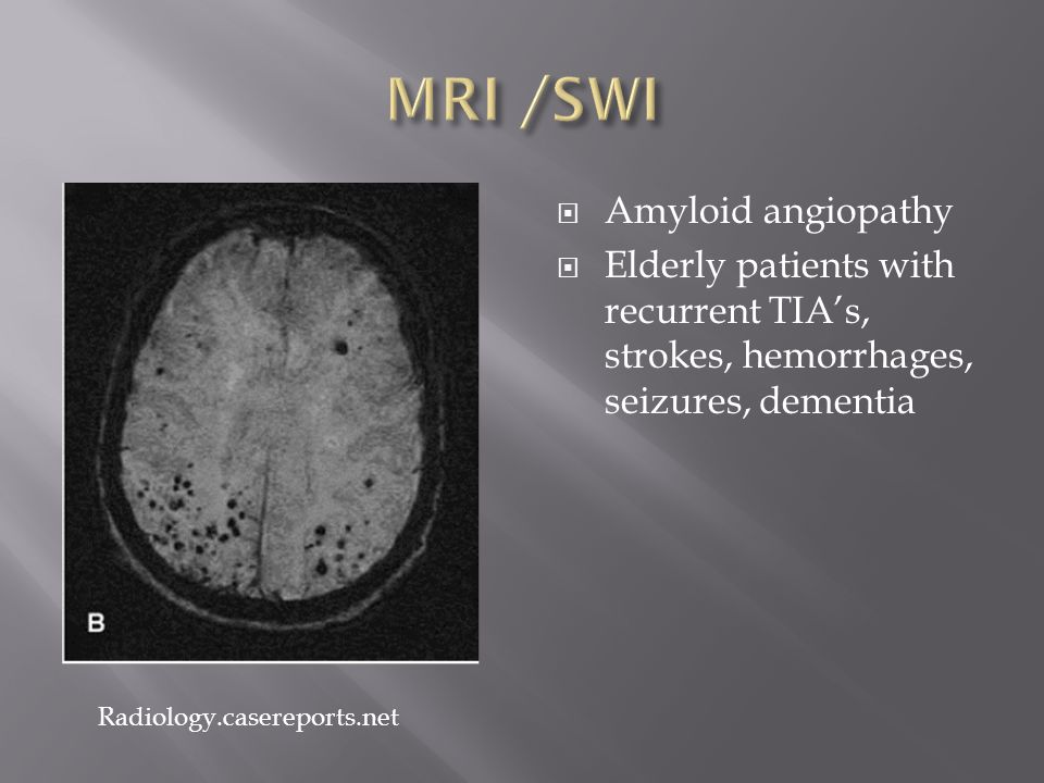 Amyloid angiopathy  Elderly patients with recurrent TIA's, strokes, hemorrhages, seizures, dementia Radiology.casereports.net