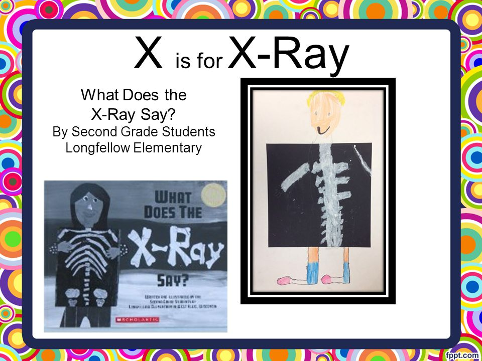 X is for X-Ray What Does the X-Ray Say? By Second Grade Students Longfellow Elementary