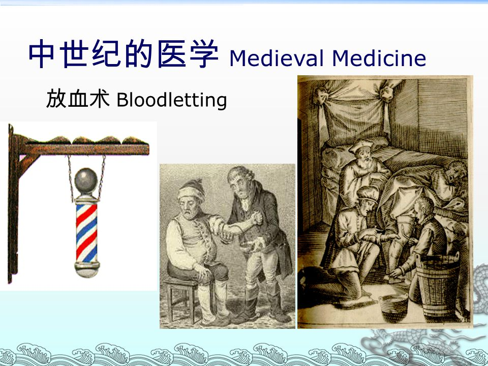 中世纪的医学 Medieval Medicine 放血术 Bloodletting