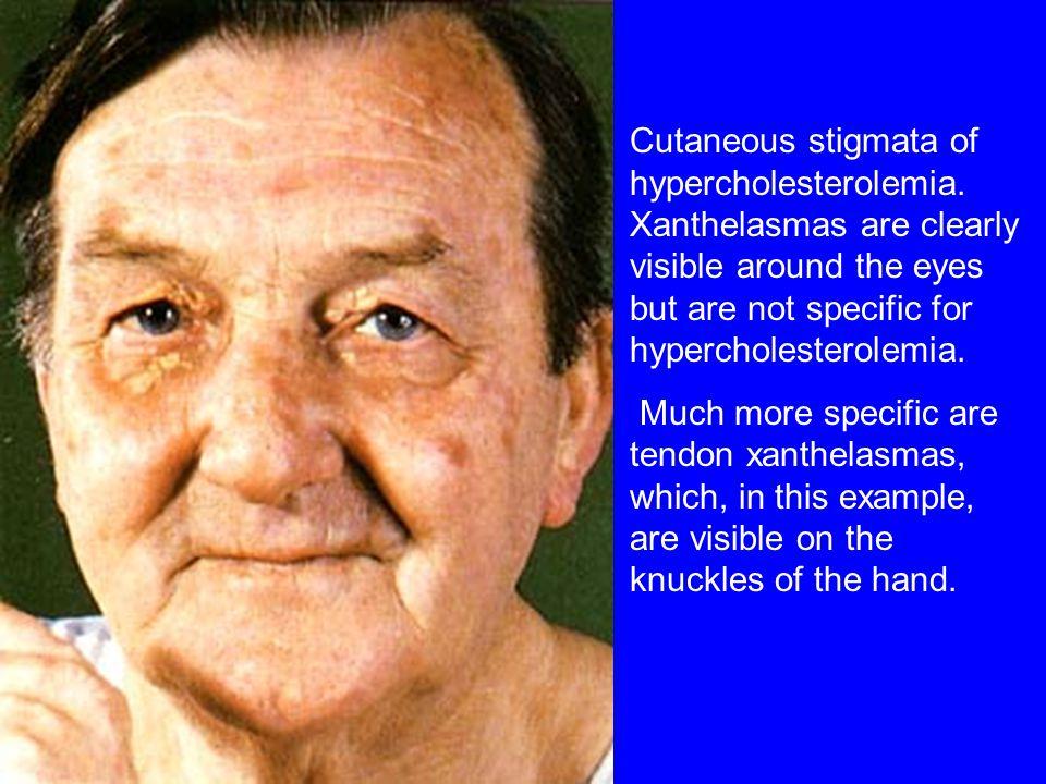 Cutaneous stigmata of hypercholesterolemia.