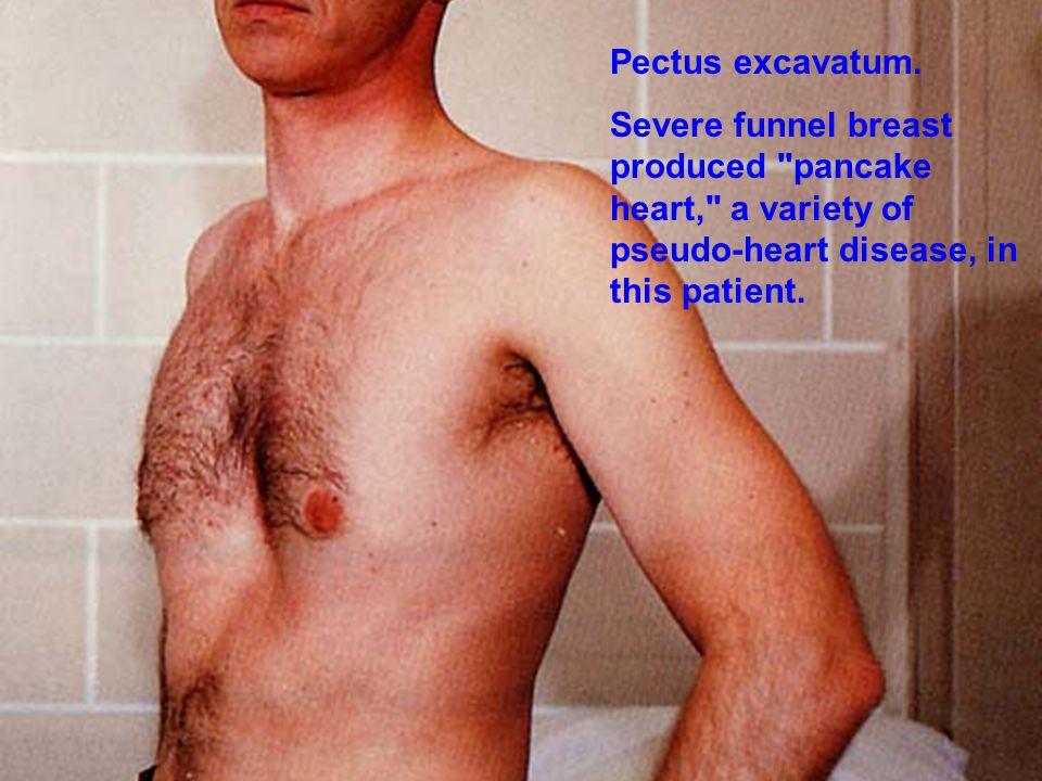 Pectus excavatum.