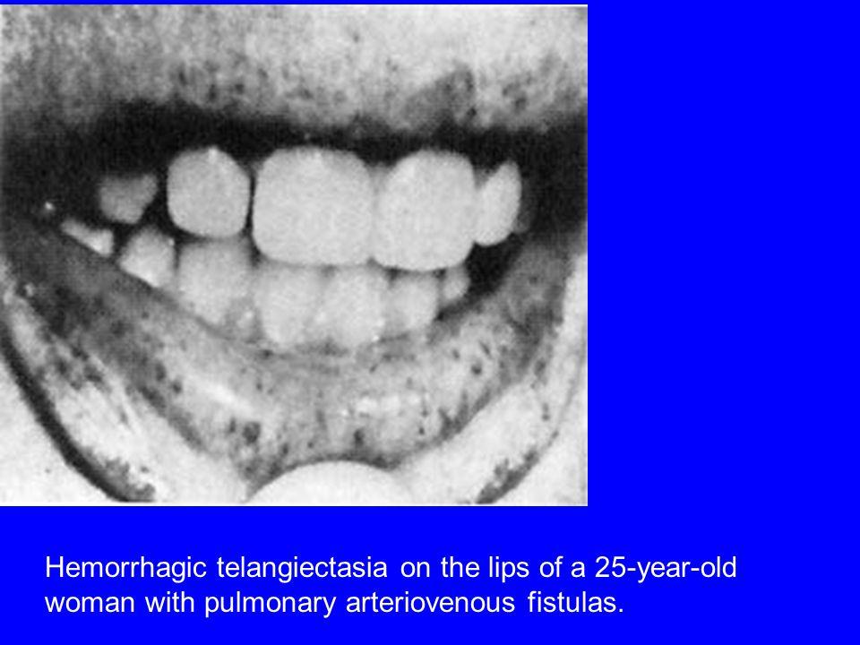 Hemorrhagic telangiectasia on the lips of a 25-year-old woman with pulmonary arteriovenous fistulas.