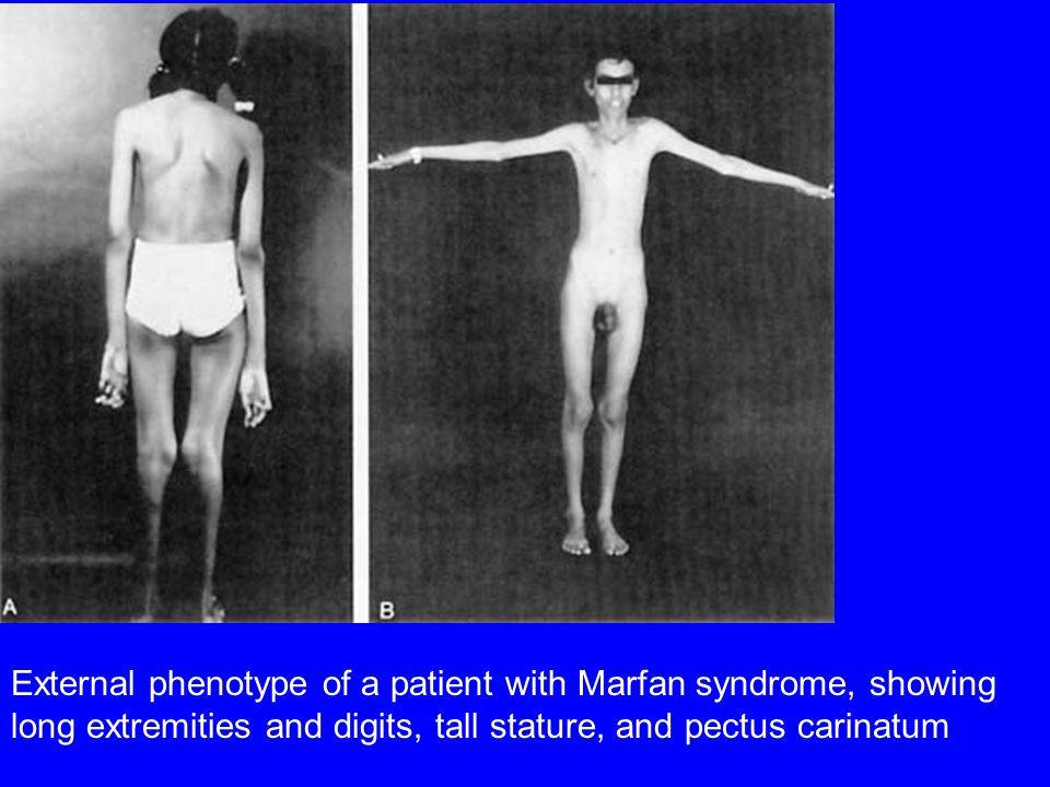External phenotype of a patient with Marfan syndrome, showing long extremities and digits, tall stature, and pectus carinatum