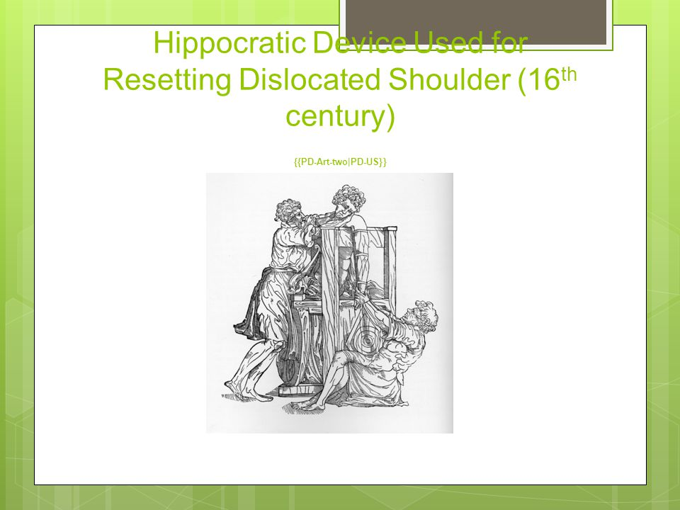 Hippocratic Device Used for Resetting Dislocated Shoulder (16 th century) {{PD-Art-two|PD-US}}