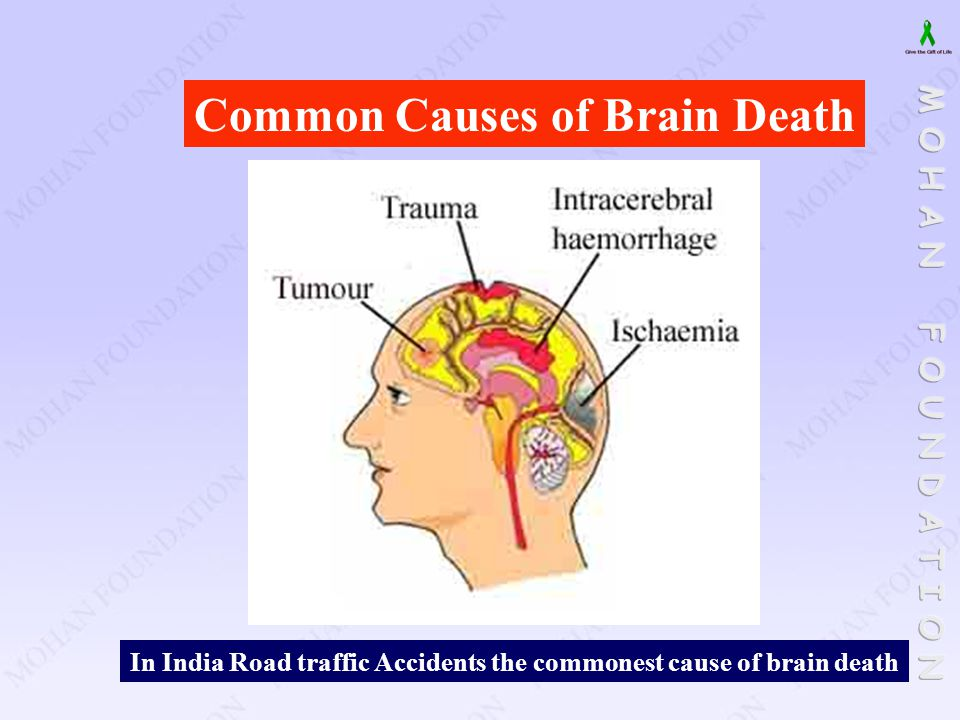 Common Causes of Brain Death In India Road traffic Accidents the commonest cause of brain death
