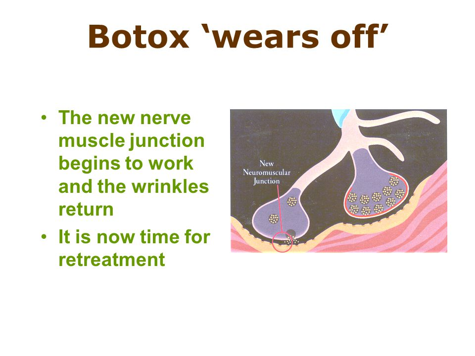 The new nerve muscle junction begins to work and the wrinkles return It is now time for retreatment Botox 'wears off'