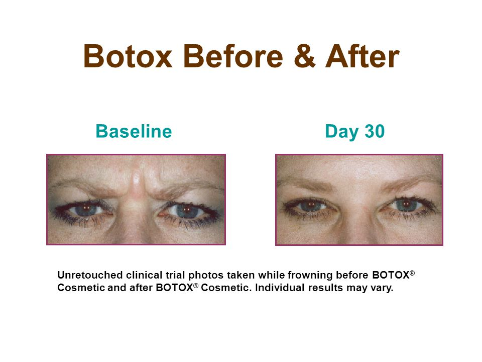Botox Before & After BaselineDay 30 Unretouched clinical trial photos taken while frowning before BOTOX ® Cosmetic and after BOTOX ® Cosmetic. Individ