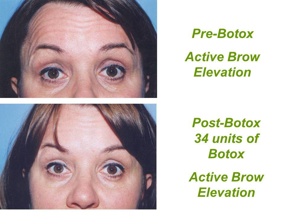 Post-Botox 34 units of Botox Active Brow Elevation Pre-Botox Active Brow Elevation