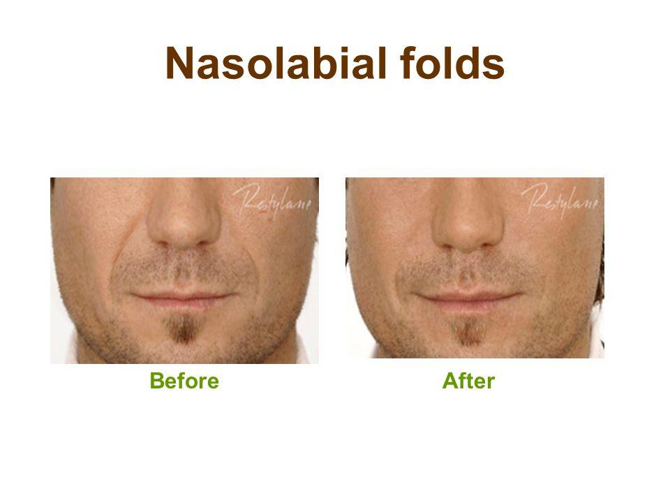 Nasolabial folds BeforeAfter