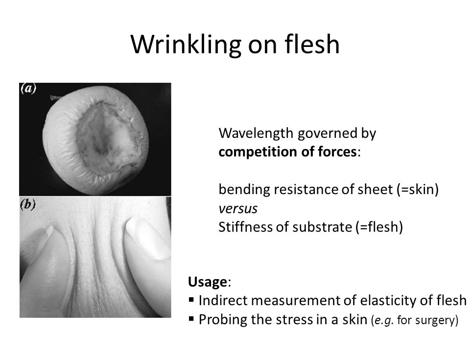 Wrinkling on flesh Wavelength governed by competition of forces: bending resistance of sheet (=skin) versus Stiffness of substrate (=flesh) Usage:  Indirect measurement of elasticity of flesh  Probing the stress in a skin (e.g.