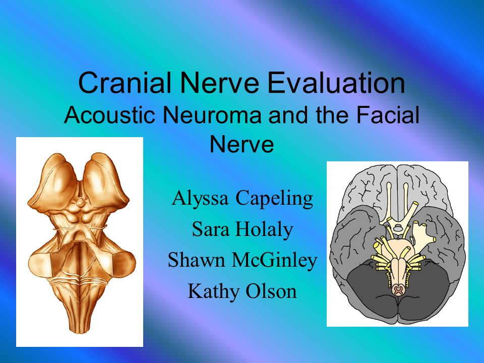 Cranial Nerve Evaluation Acoustic Neuroma and the Facial Nerve Alyssa Capeling Sara Holaly Shawn McGinley Kathy Olson