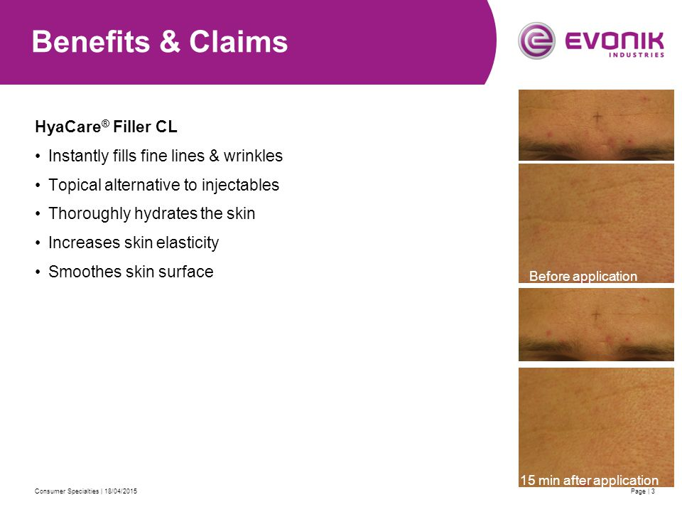 Consumer Specialties | 18/04/2015Page | 3 Benefits & Claims HyaCare ® Filler CL Instantly fills fine lines & wrinkles Topical alternative to injectables Thoroughly hydrates the skin Increases skin elasticity Smoothes skin surface Start Before application 15 min after application
