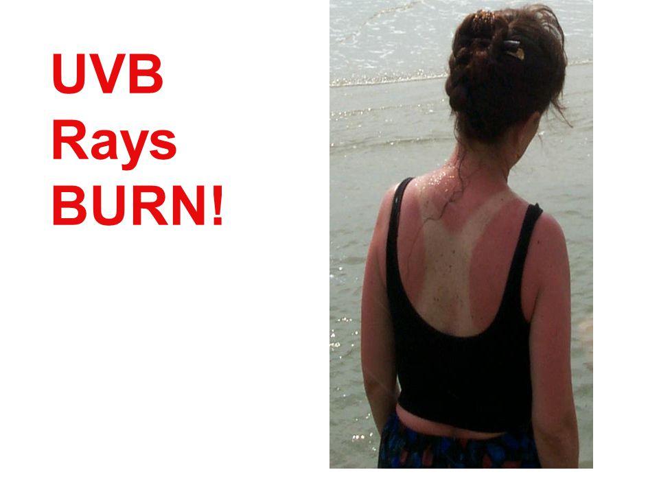 UVB Rays BURN!