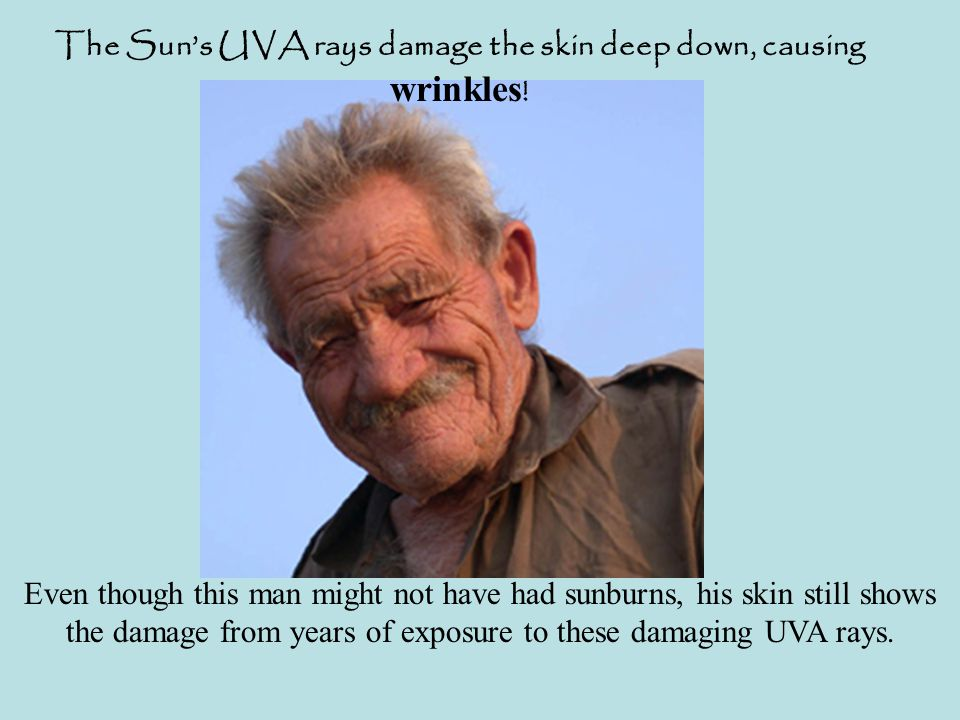 The Sun's UVA rays damage the skin deep down, causing wrinkles .