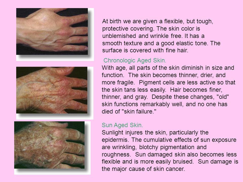 Chronologic Aged Skin. With age, all parts of the skin diminish in size and function. The skin becomes thinner, drier, and more fragile. Pigment cells