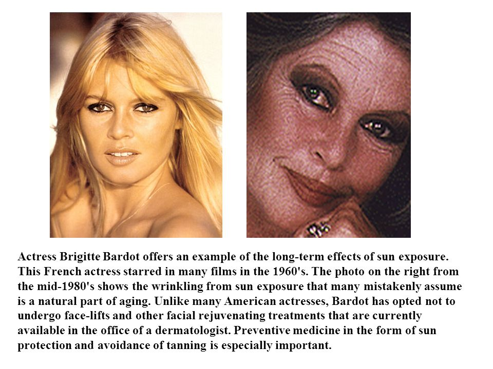 Actress Brigitte Bardot offers an example of the long-term effects of sun exposure.
