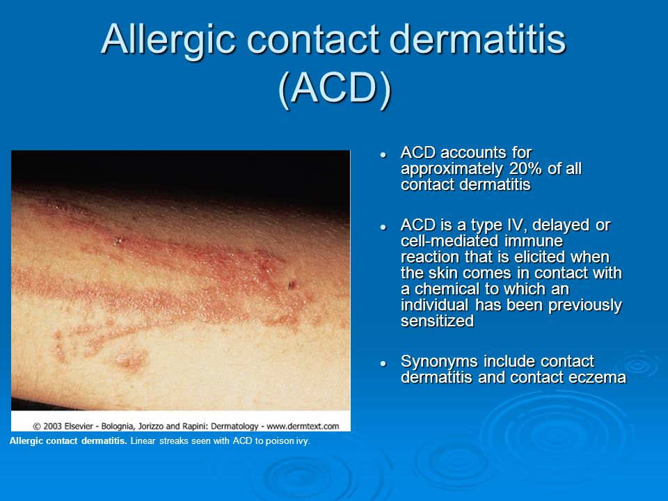 Allergic contact dermatitis (ACD) ACD accounts for approximately 20% of all contact dermatitis ACD is a type IV, delayed or cell-mediated immune react