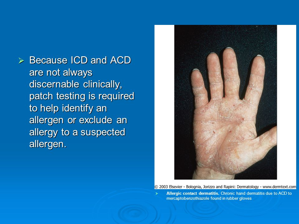  Because ICD and ACD are not always discernable clinically, patch testing is required to help identify an allergen or exclude an allergy to a suspect