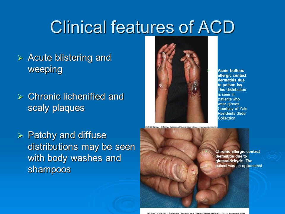 Clinical features of ACD  Acute blistering and weeping  Chronic lichenified and scaly plaques  Patchy and diffuse distributions may be seen with bo
