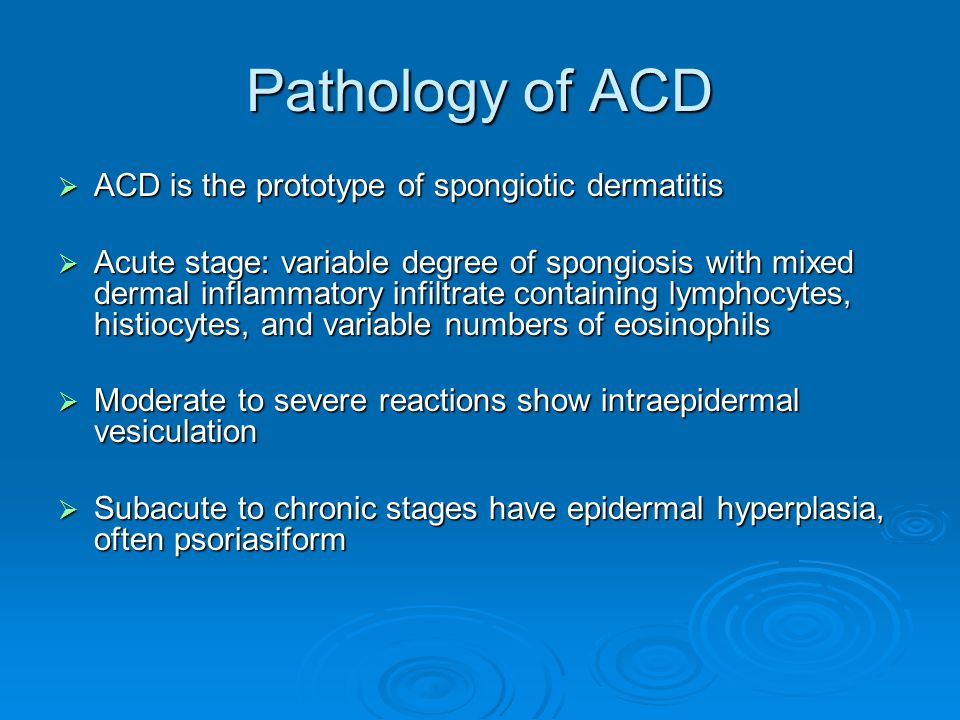 Pathology of ACD  ACD is the prototype of spongiotic dermatitis  Acute stage: variable degree of spongiosis with mixed dermal inflammatory infiltrat