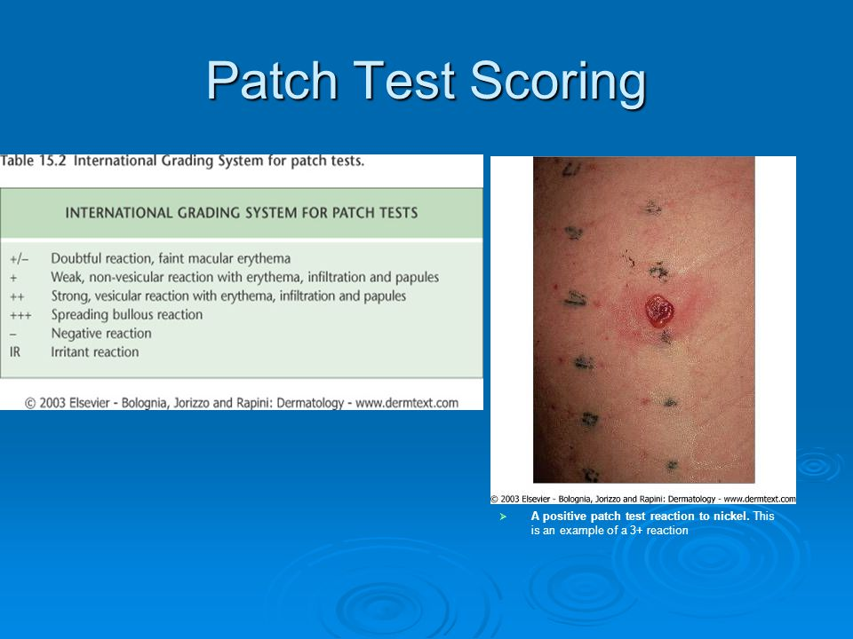 Patch Test Scoring  A positive patch test reaction to nickel. This is an example of a 3+ reaction