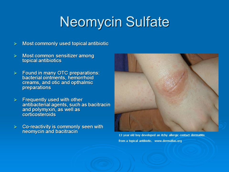Neomycin Sulfate  Most commonly used topical antibiotic  Most common sensitizer among topical antibiotics  Found in many OTC preparations: bacteria