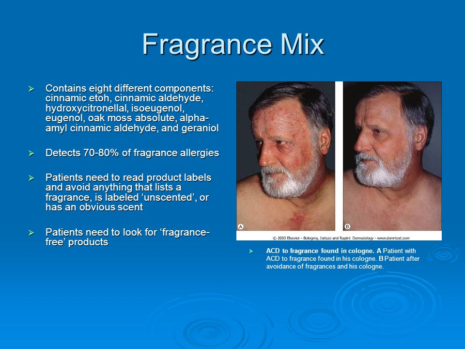 Fragrance Mix  Contains eight different components: cinnamic etoh, cinnamic aldehyde, hydroxycitronellal, isoeugenol, eugenol, oak moss absolute, alp