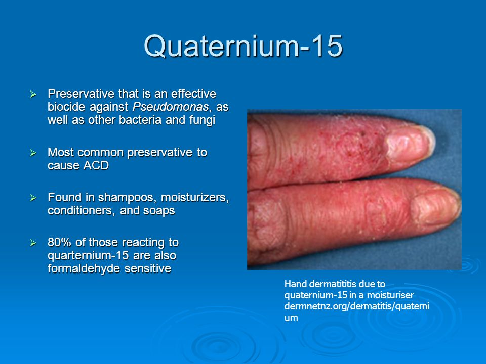 Quaternium-15  Preservative that is an effective biocide against Pseudomonas, as well as other bacteria and fungi  Most common preservative to cause