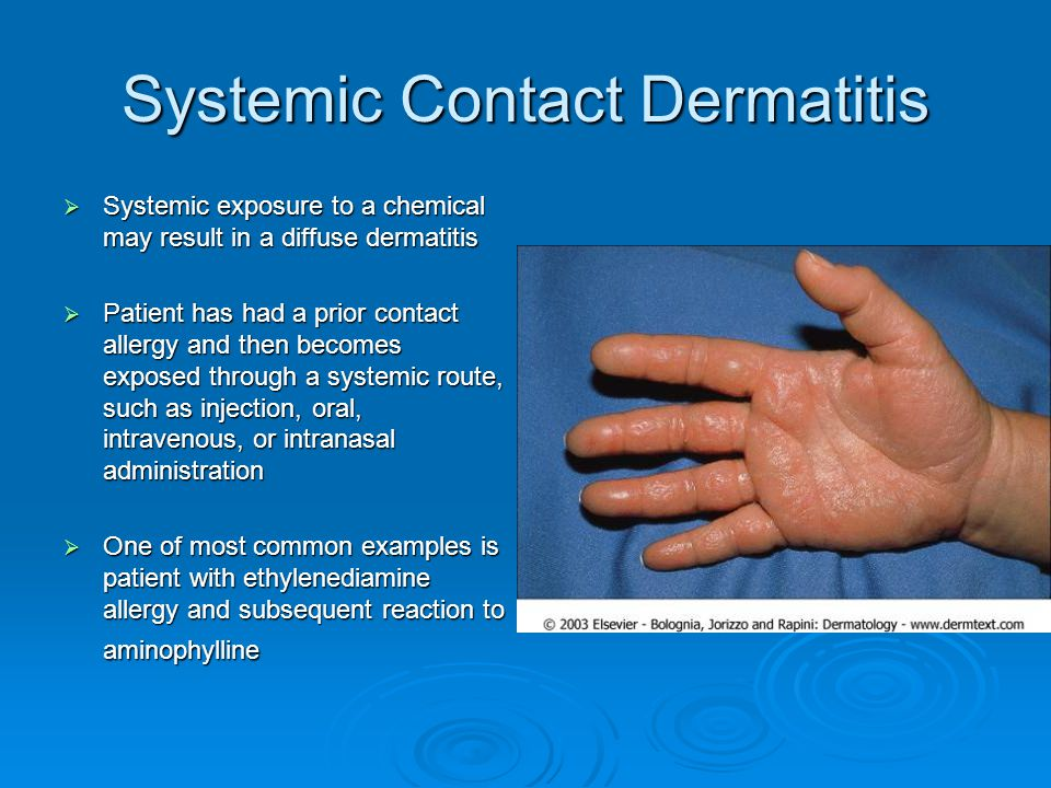 Systemic Contact Dermatitis  Systemic exposure to a chemical may result in a diffuse dermatitis  Patient has had a prior contact allergy and then be