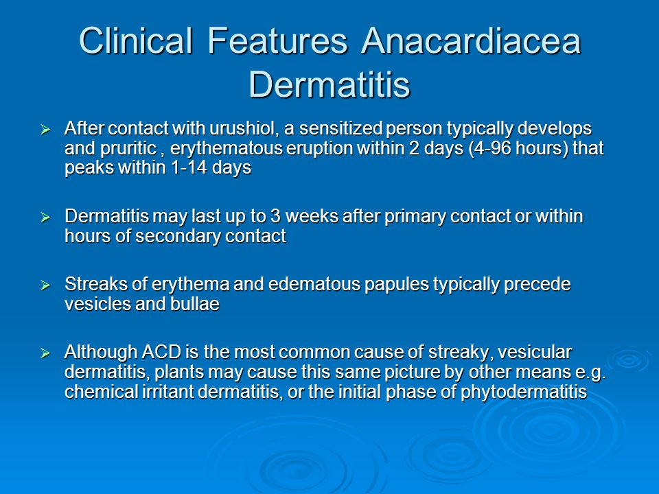 Clinical Features Anacardiacea Dermatitis  After contact with urushiol, a sensitized person typically develops and pruritic, erythematous eruption wi