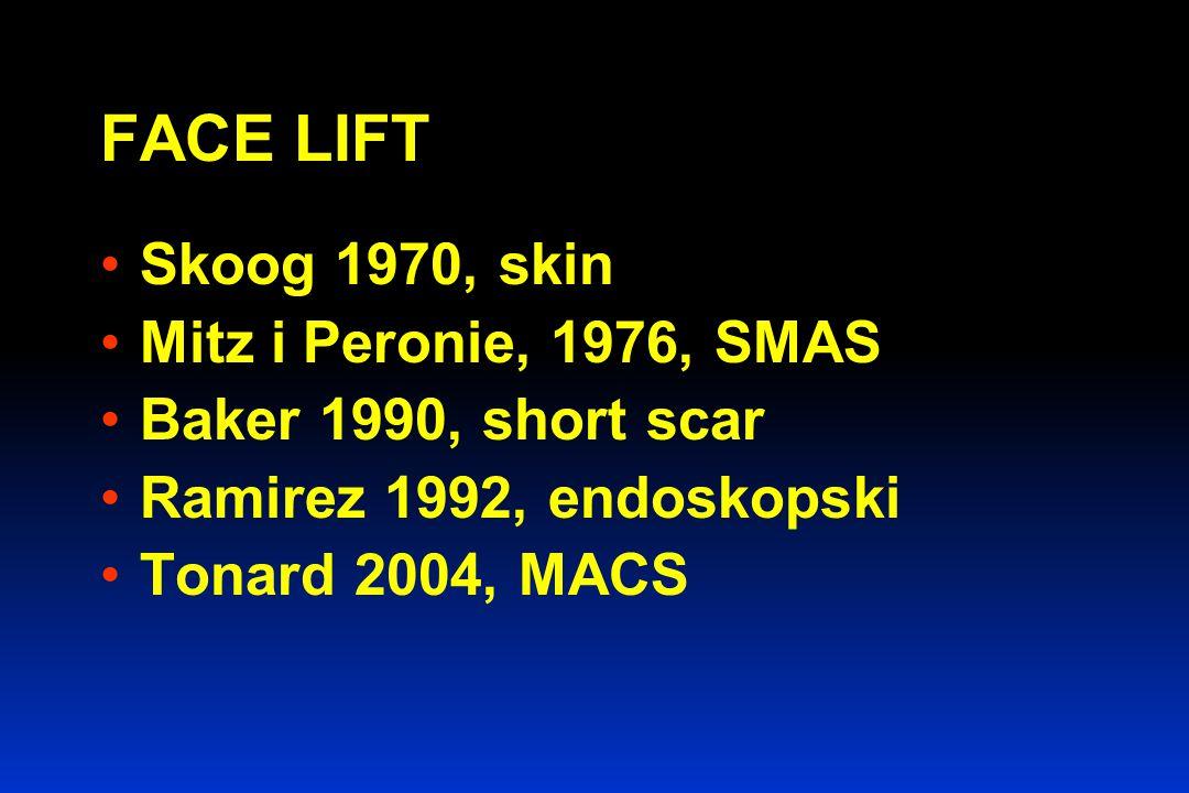 FACE LIFT Skoog 1970, skin Mitz i Peronie, 1976, SMAS Baker 1990, short scar Ramirez 1992, endoskopski Tonard 2004, MACS