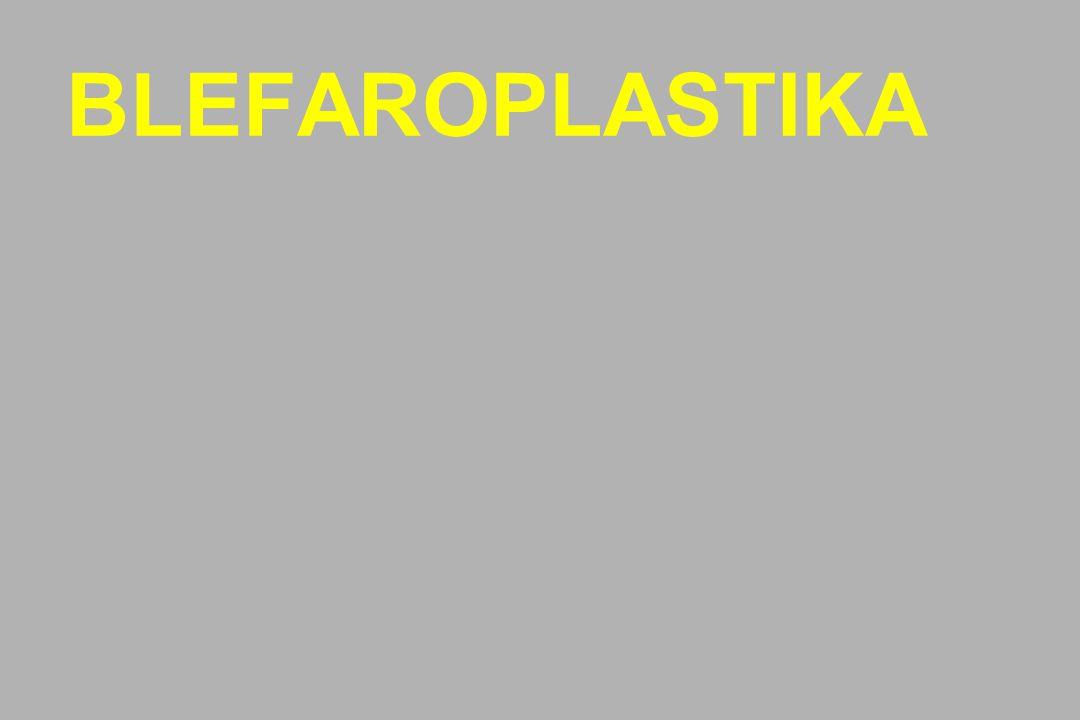 BLEFAROPLASTIKA