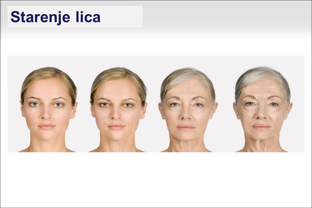 Starenje lica
